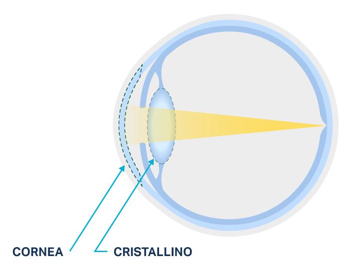 Diagramma di un cristallino normale rispetto a un cristallino opacizzato da una cataratta oculare