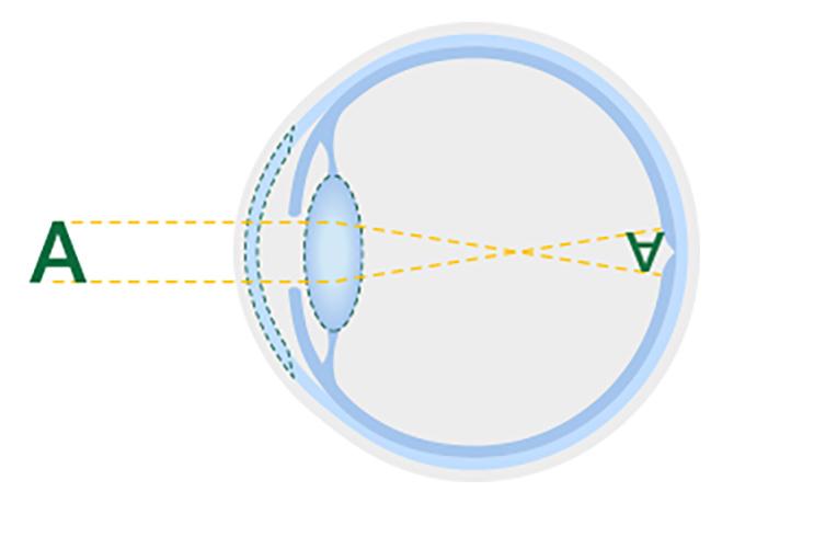Diagramma di un cristallino sano
