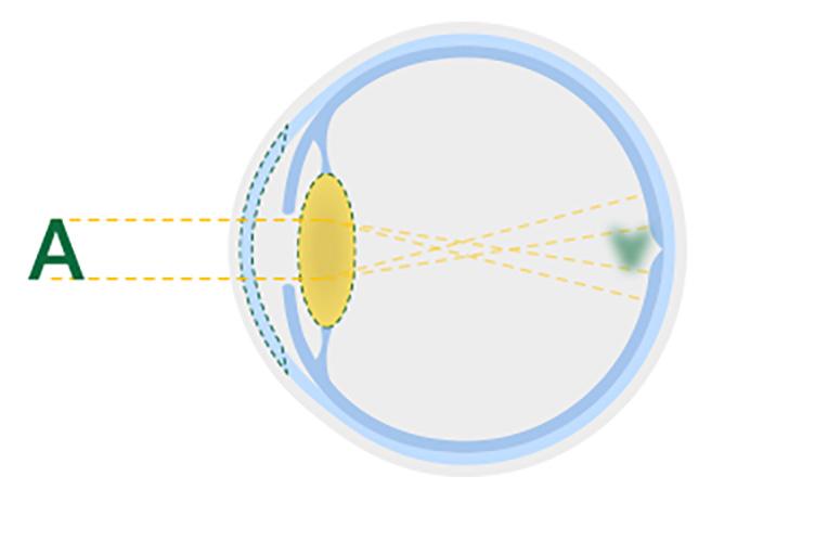 Diagramma di un cristallino opacizzato dovuto a cataratta oculare